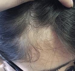 Shampoo Anticaspa: Dica de Amiga